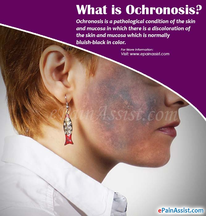 What is Ochronosis?
