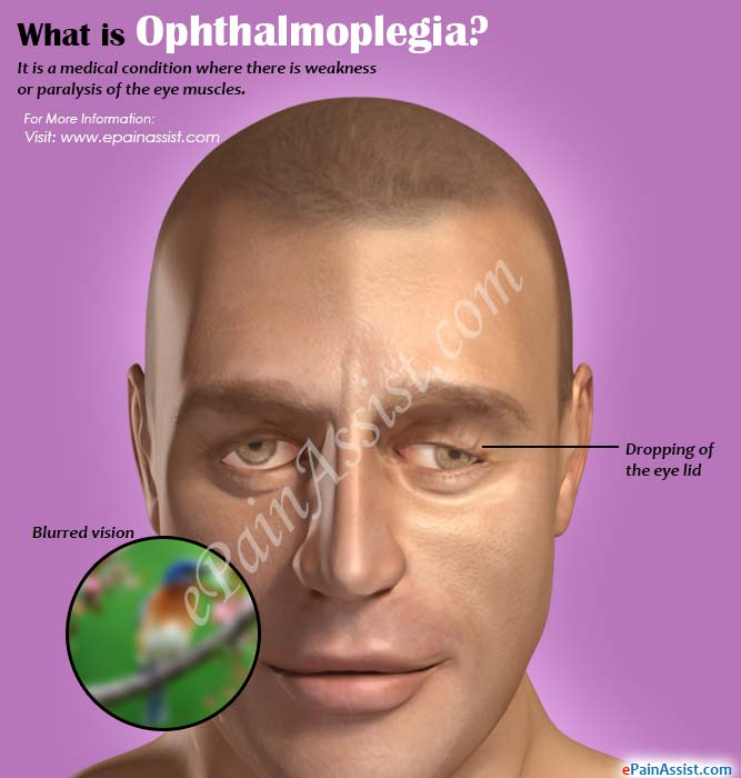 What is Ophthalmoplegia?