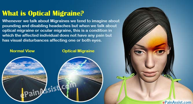 What is Optical Migraine or Ocular Migraine?