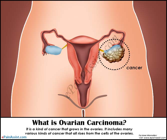 What is Ovarian Carcinoma?