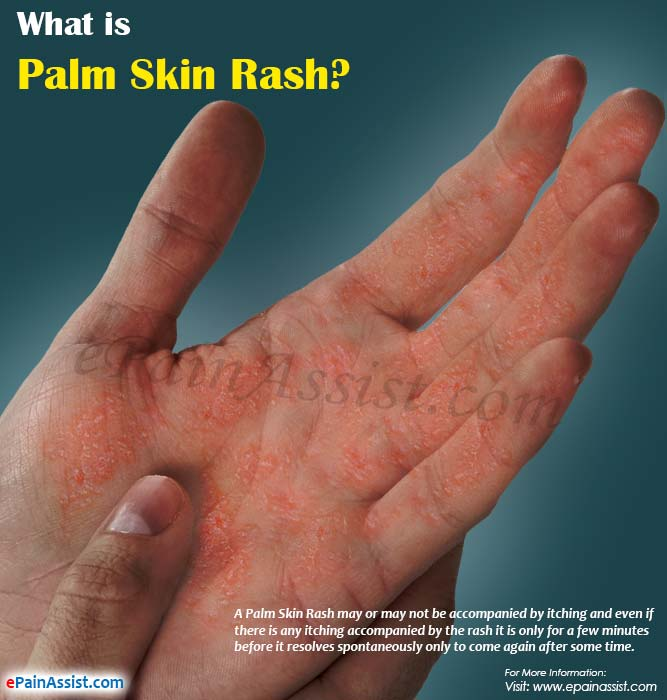 What is Palm Skin Rash?