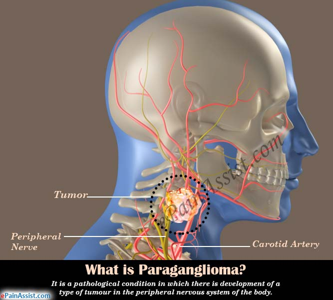 What is Paraganglioma?