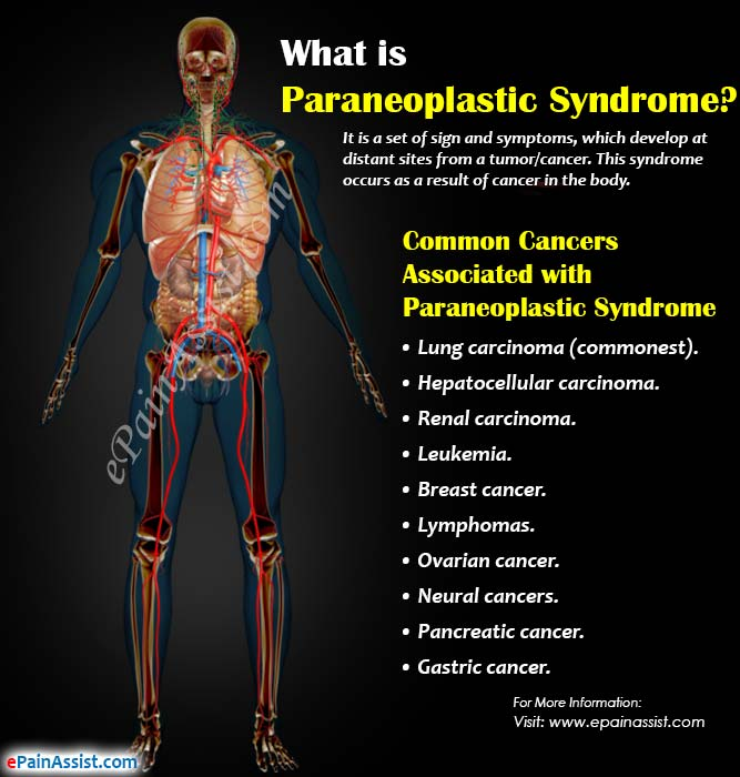 What is Paraneoplastic Syndrome?