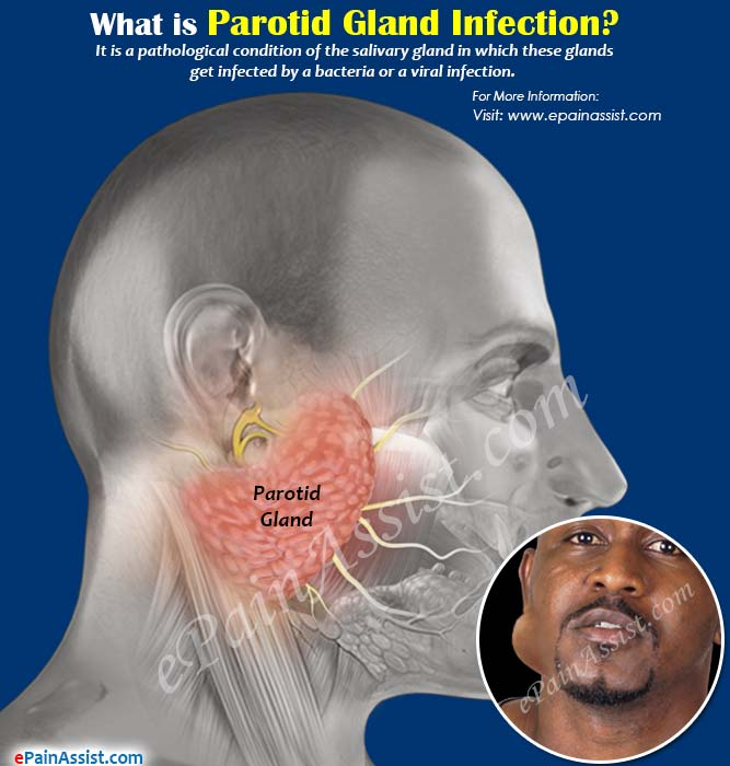 What is Parotid Gland Infection?