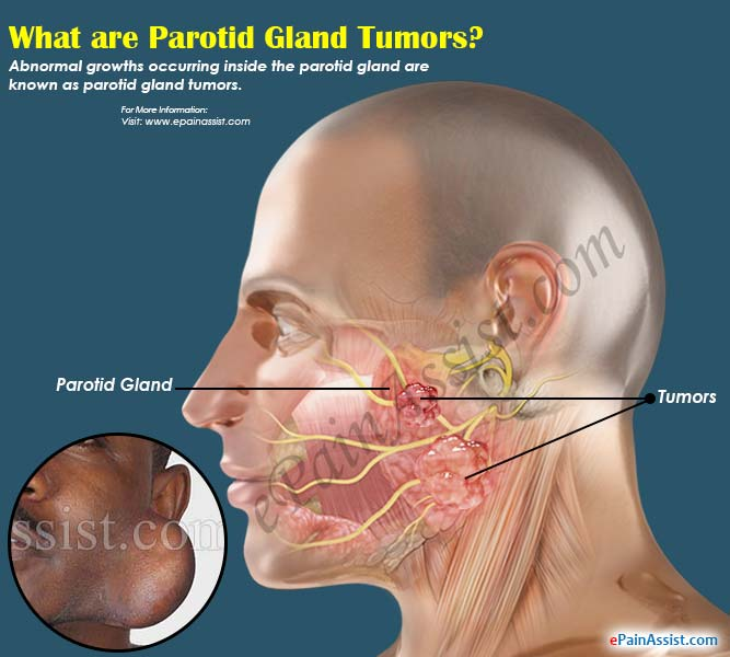 parotid gland tumor|causes|symptoms|treatment|risk factors, Skeleton