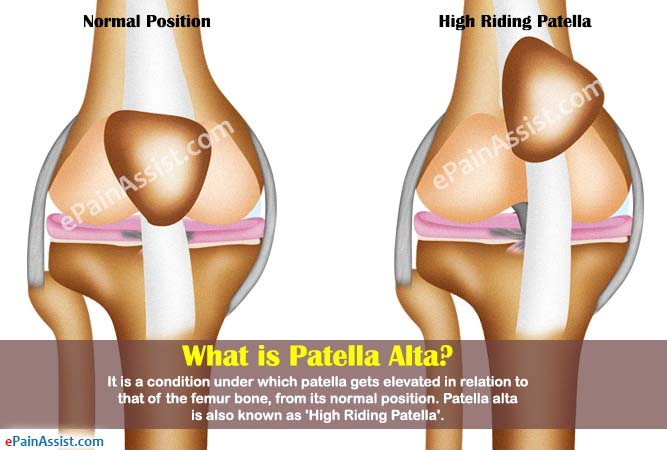 What is Patella Alta?