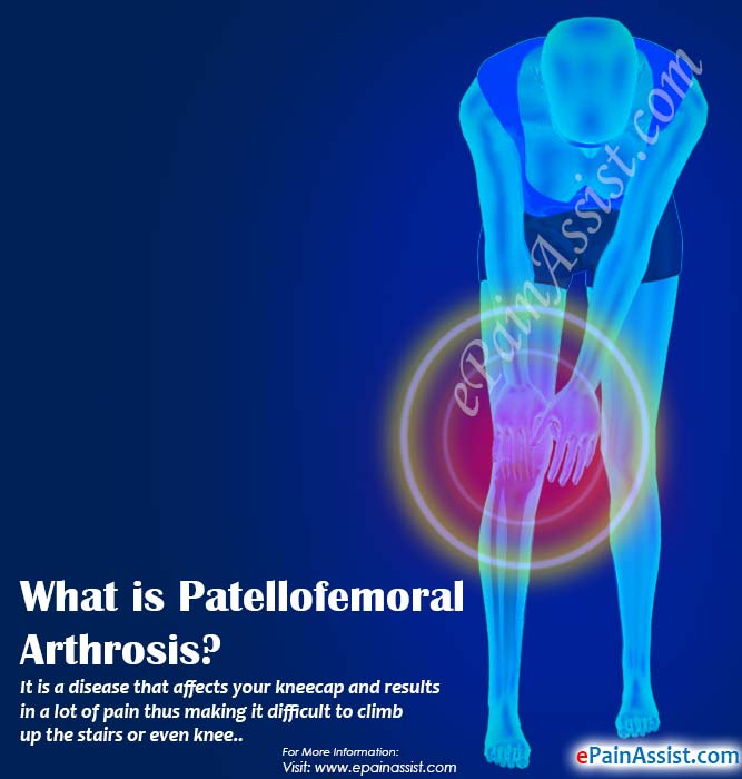 What is Patellofemoral Arthrosis?