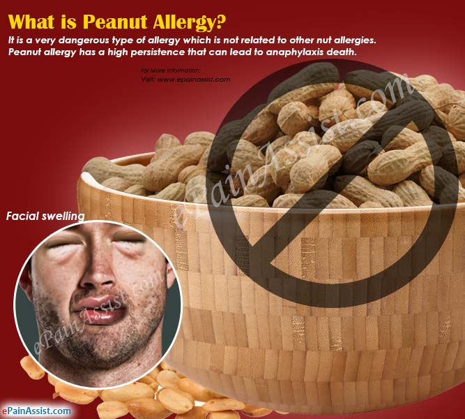 What is Peanut Allergy?
