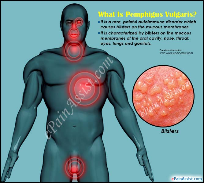 What Is Pemphigus Vulgaris?