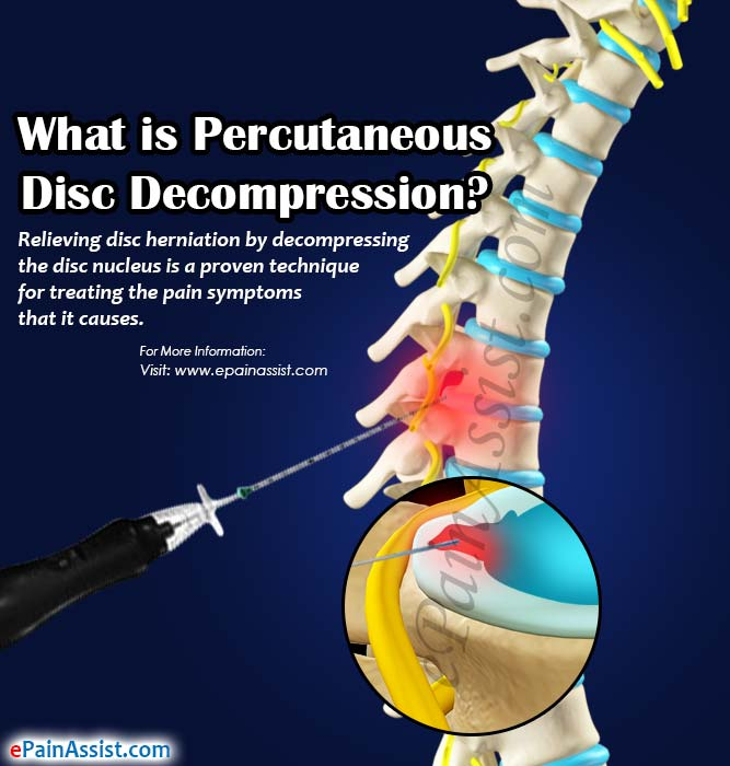 What is Percutaneous Disc Decompression?