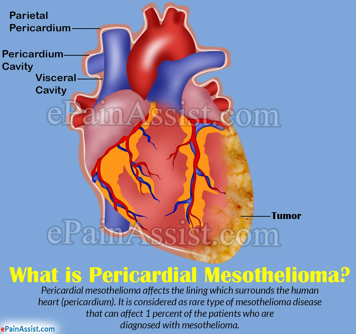 What is Pericardial Mesothelioma?