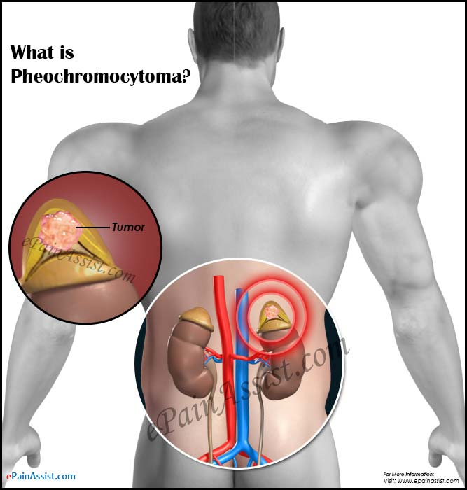 What is Pheochromocytoma?