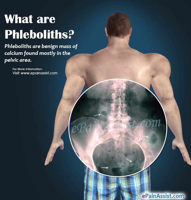 What are Phleboliths?