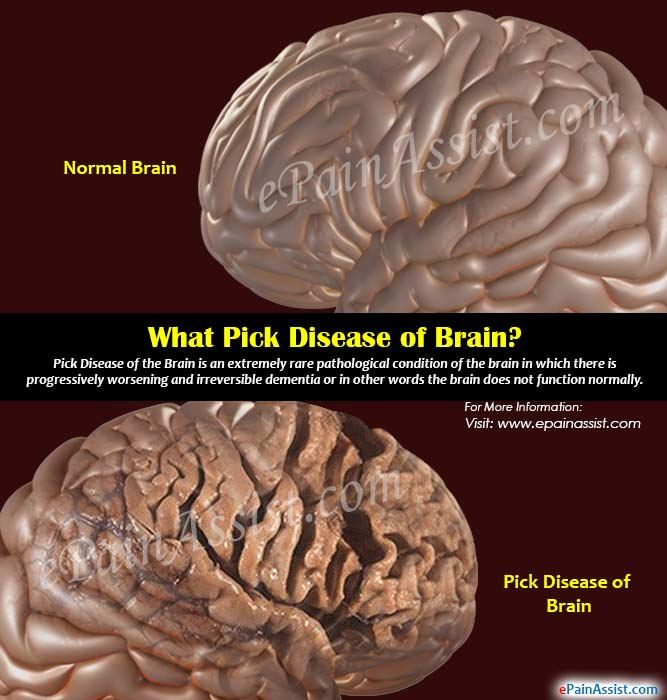 What is Pick Disease of Brain?
