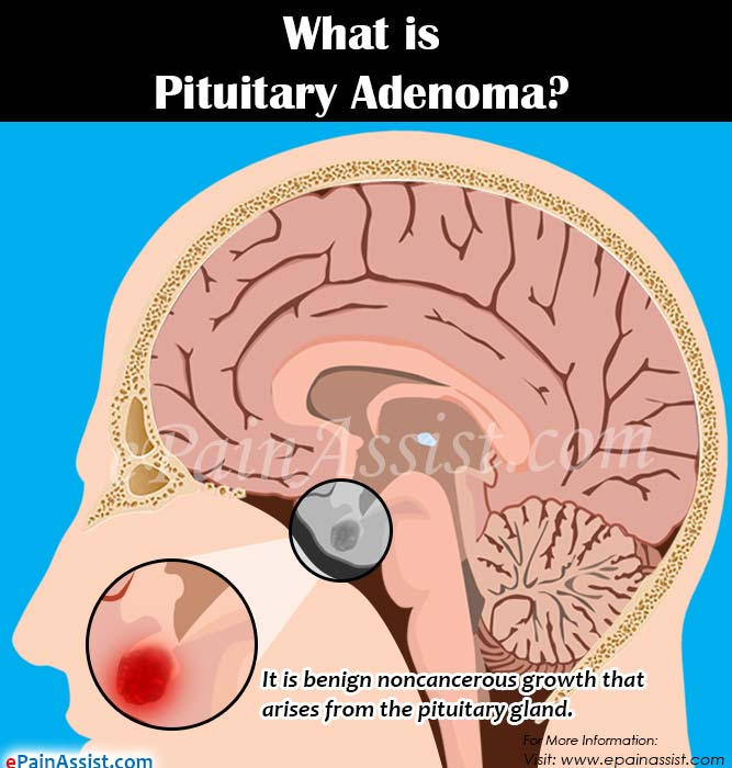 What is Pituitary Adenoma?