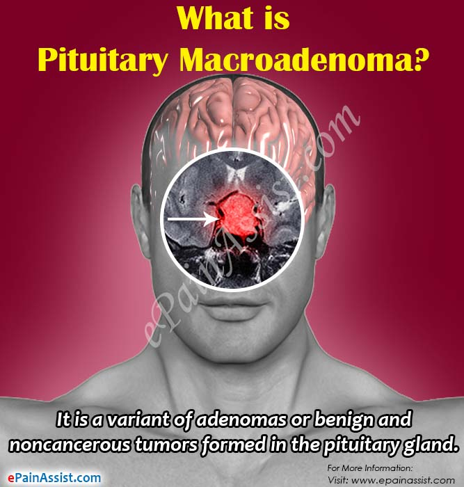 What is Pituitary Macroadenoma?