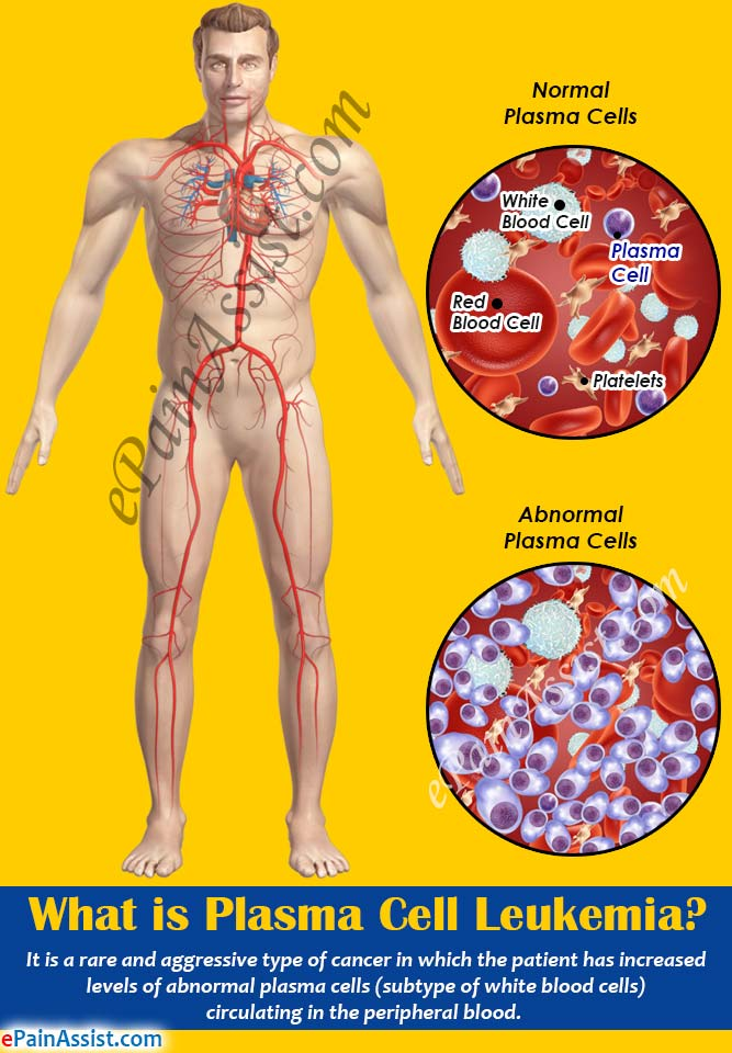 leukemia causes treatment and symptoms Different types of leukemia and its symptoms, causes & treatment september 29, 2016 march 20, 2017 nextdoorlab 0 leukemia or leukaemia is a type of bone marrow or blood cancer.