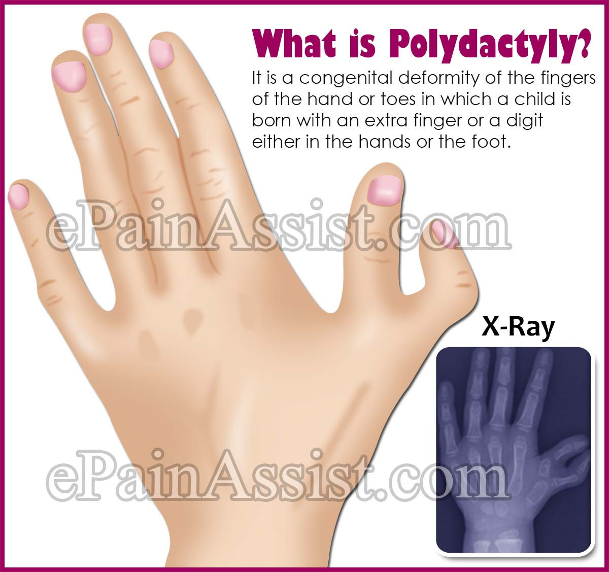 What is Polydactyly?