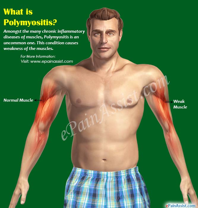 What is Polymyositis?