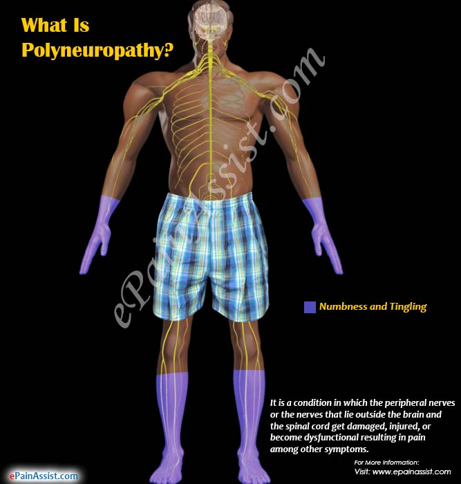 What Is Polyneuropathy?