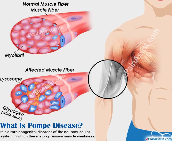 What Is Pompe Disease?