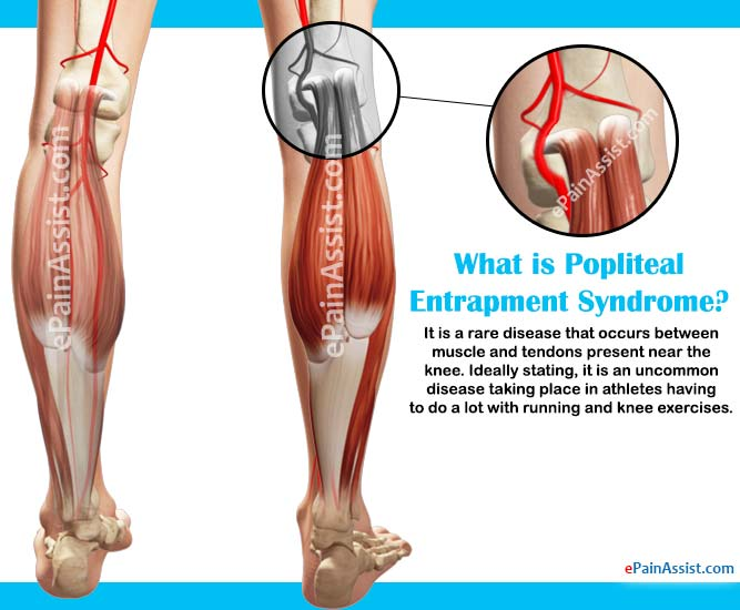 What is Popliteal Entrapment Syndrome|Causes|Symptoms|Treatment ...