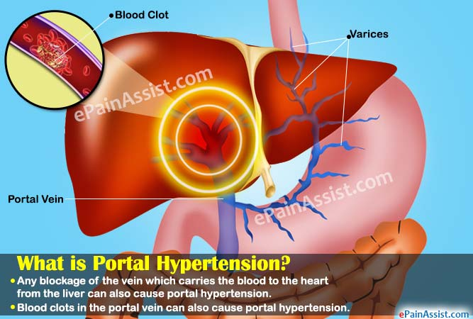What is Portal Hypertension?