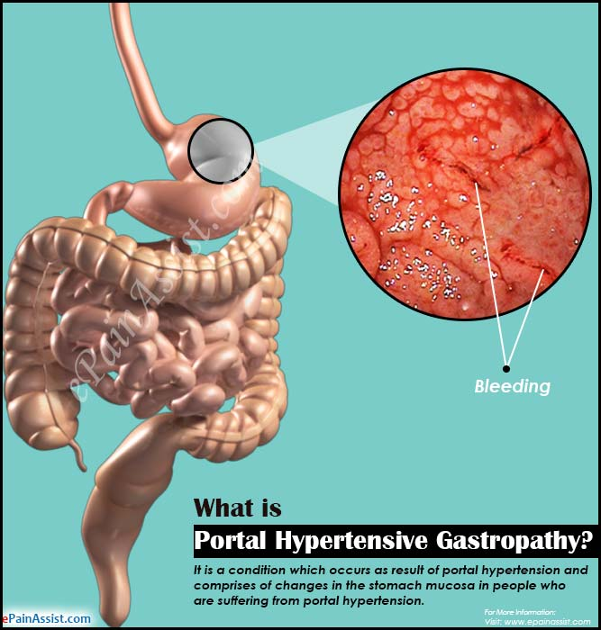 What Is Portal Hypertensive Gastropathy Amp How Is It Treated