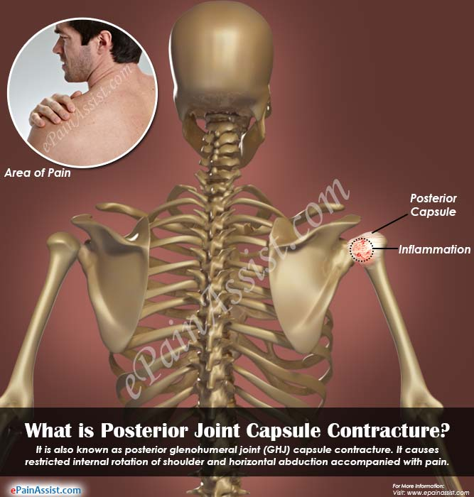What is Posterior Joint Capsule Contracture?