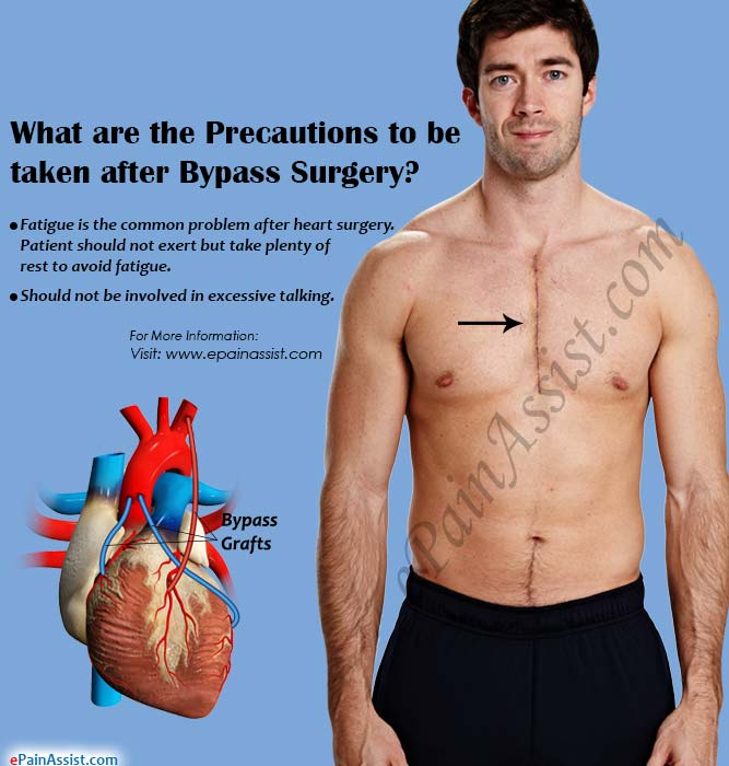 Precautions after Bypass Surgery, Know the Do's & Don'ts after