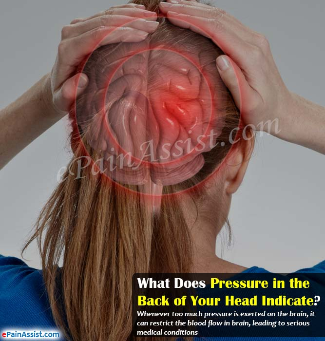 What Does Pressure in the Back of Your Head Indicate?