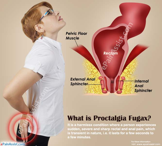 Proctalgia Fugax|Causes|Symptoms|Treatment|Home Remedies ...