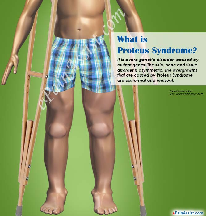 What is Proteus Syndrome?