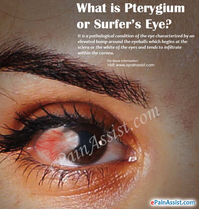 Pterygium Or Surfer S Eye Causes Symptoms Treatment Prevention