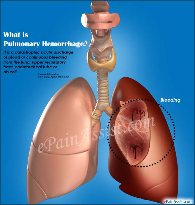 What is Pulmonary Hemorrhage?