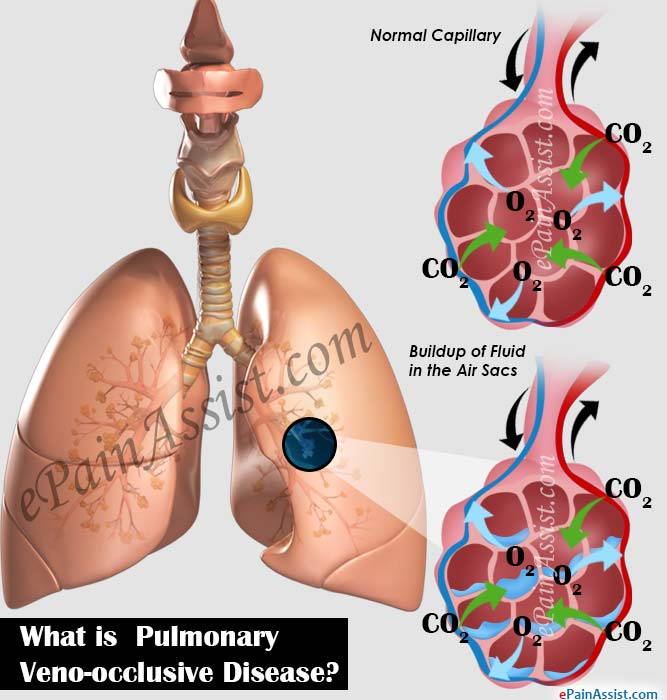 What is Pulmonary Veno-occlusive Disease?