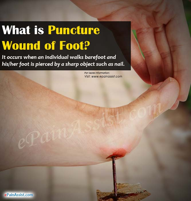 What is Puncture Wound of Foot or Nail in Foot?