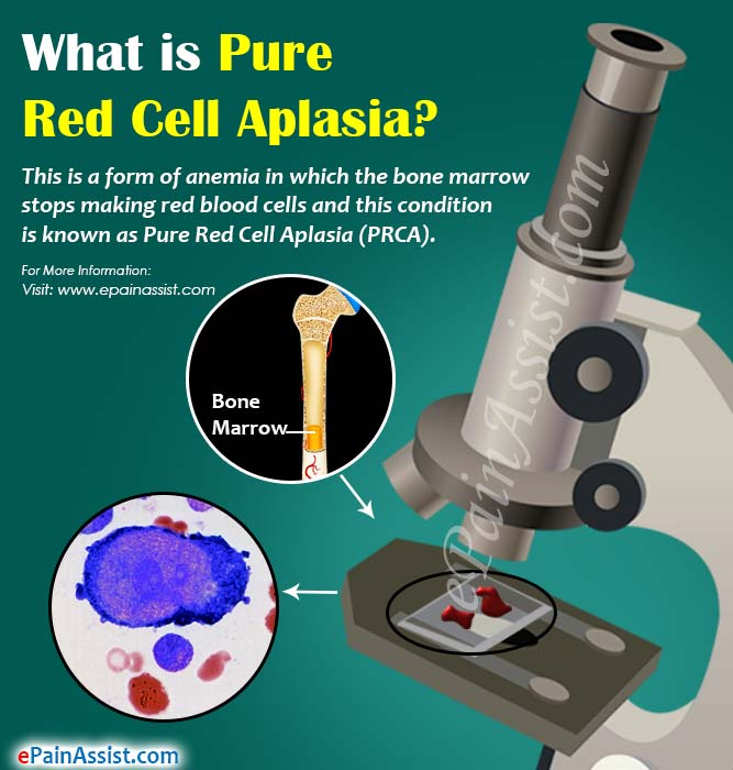 What is Pure Red Cell Aplasia?