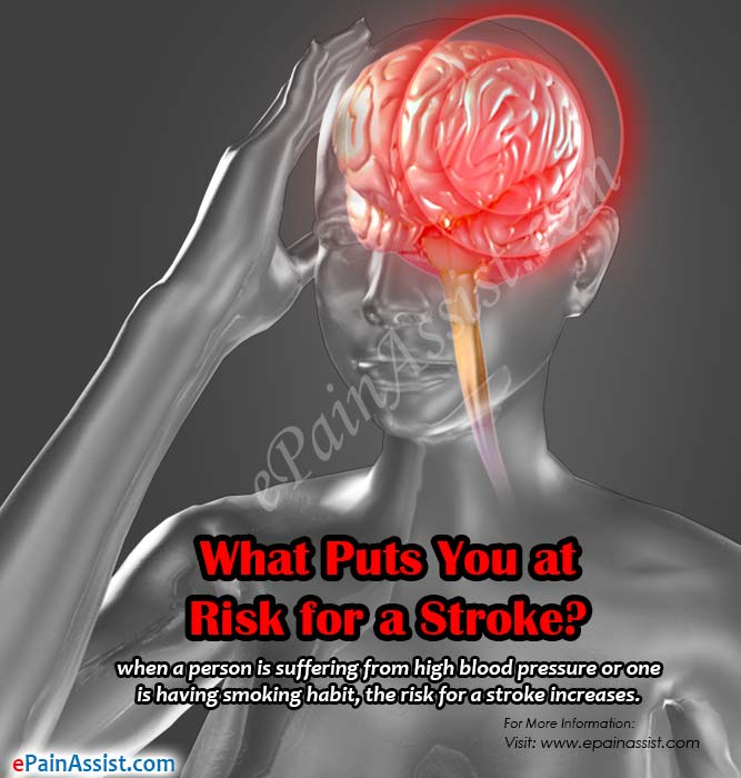 What Puts You at Risk for a Stroke?