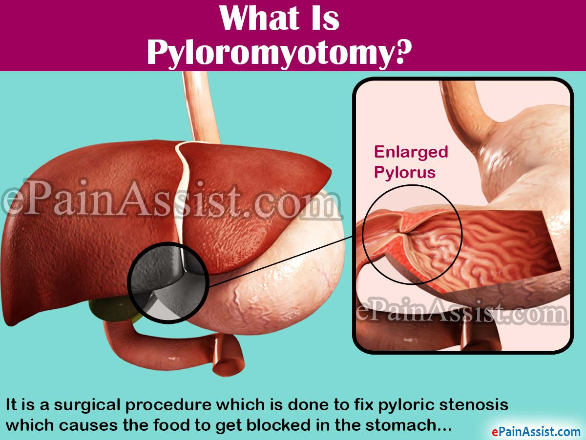 What Is Pyloromyotomy?