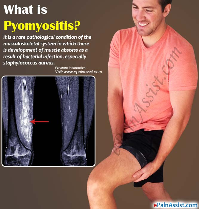 What is Pyomyositis?