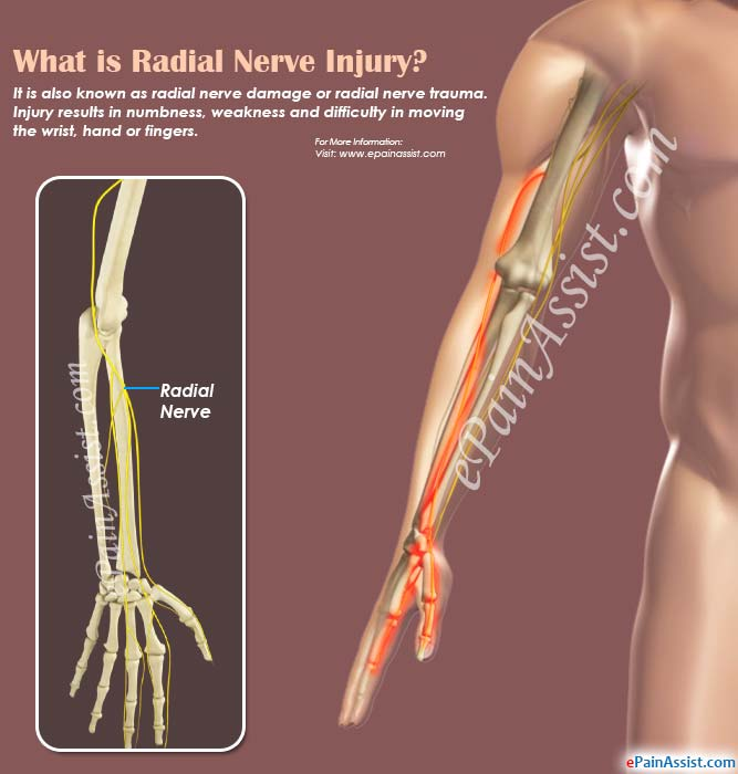 What Is Radial Nerve Injurycausessymptomstreatmentprognosis