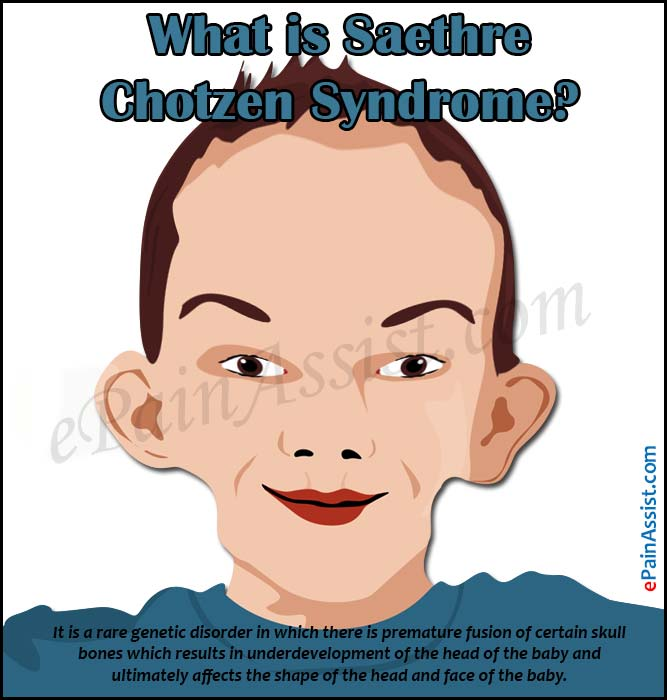 asymetrical facial features syndromes