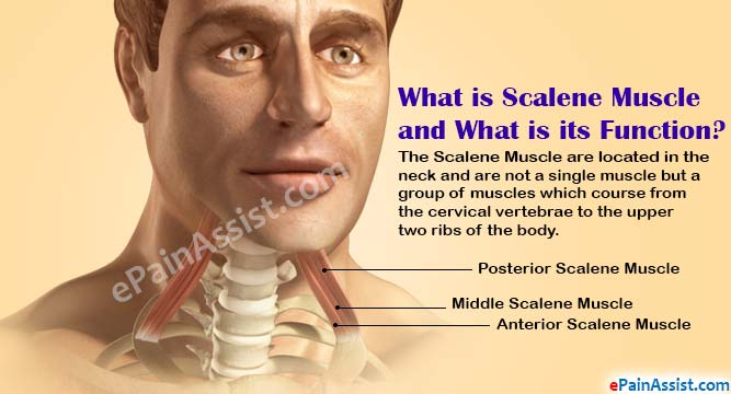 Scalene Muscle Strain