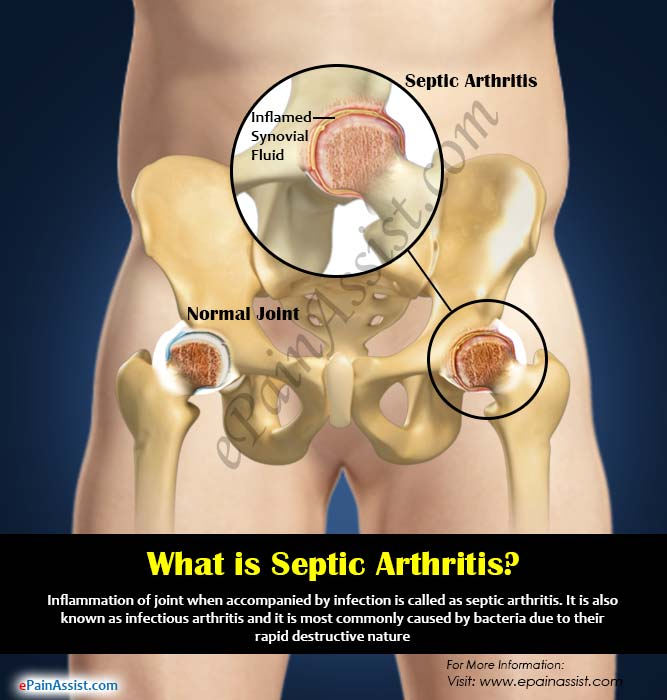 What is a Septic Arthritis?