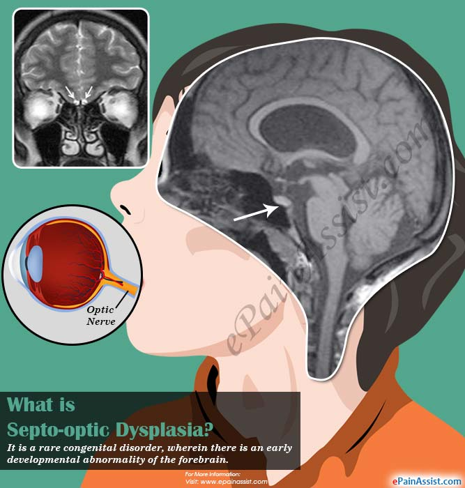 What is Septo-optic Dysplasia?