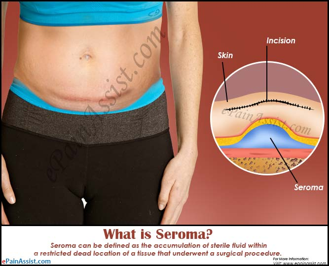 What Is Seroma Symptoms Treatment Causes Prognosis