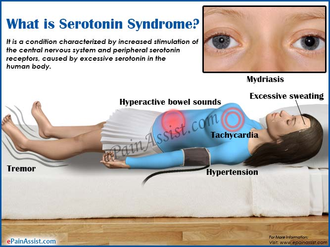 how long does serotonin syndrome last