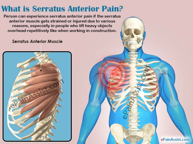 What Is Serratus Anterior Paincausessymptomstreatmentrisk Factors
