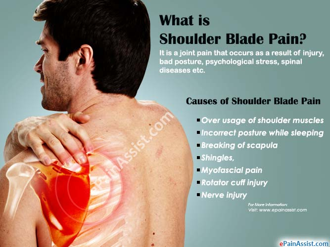 What is Shoulder Blade Pain?